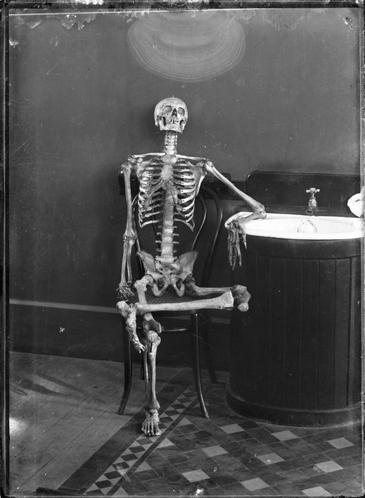 2008/165/1-180 Glass plate negative (1 of 193), portrait of an articulated skeleton on a bentwood chair, glass, photographer possibly Arthur Phillips, Australia, c. 1895-1905. Click to enlarge.